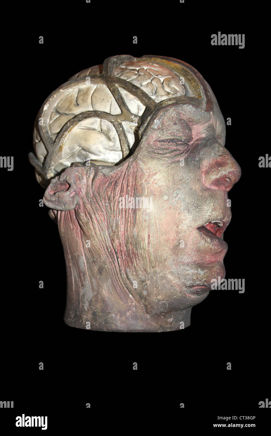 Wax Anatomical Model With Part Of Skull Removed Exposing Brain - Stock Image