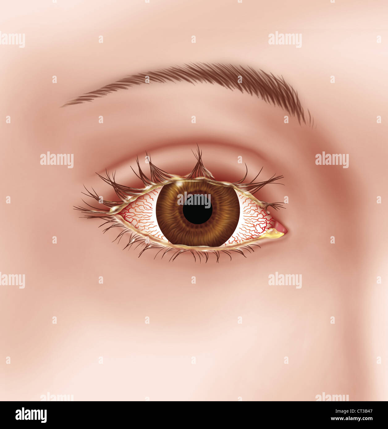 INFECTIOUS CONJUNCTIVITIS, DRAW. - Stock Image