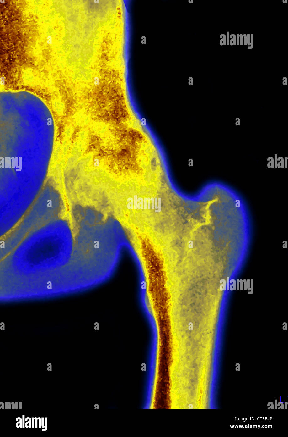HIP OSTEOARTHRITIS, X-RAY - Stock Image
