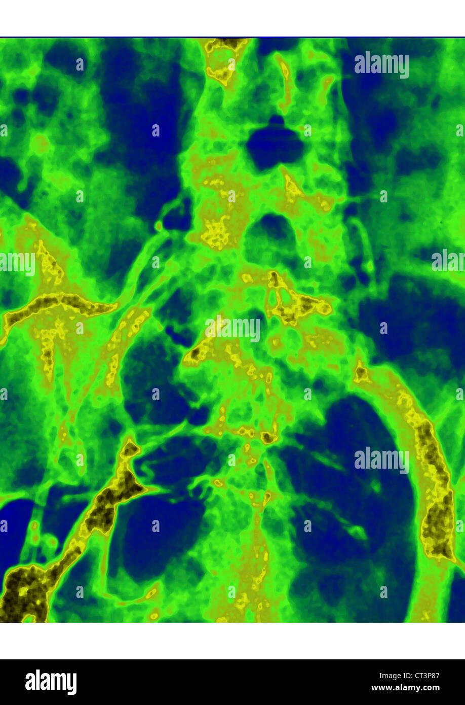 THROMBOPHLEBITIS, ANGIOGRAPHY - Stock Image