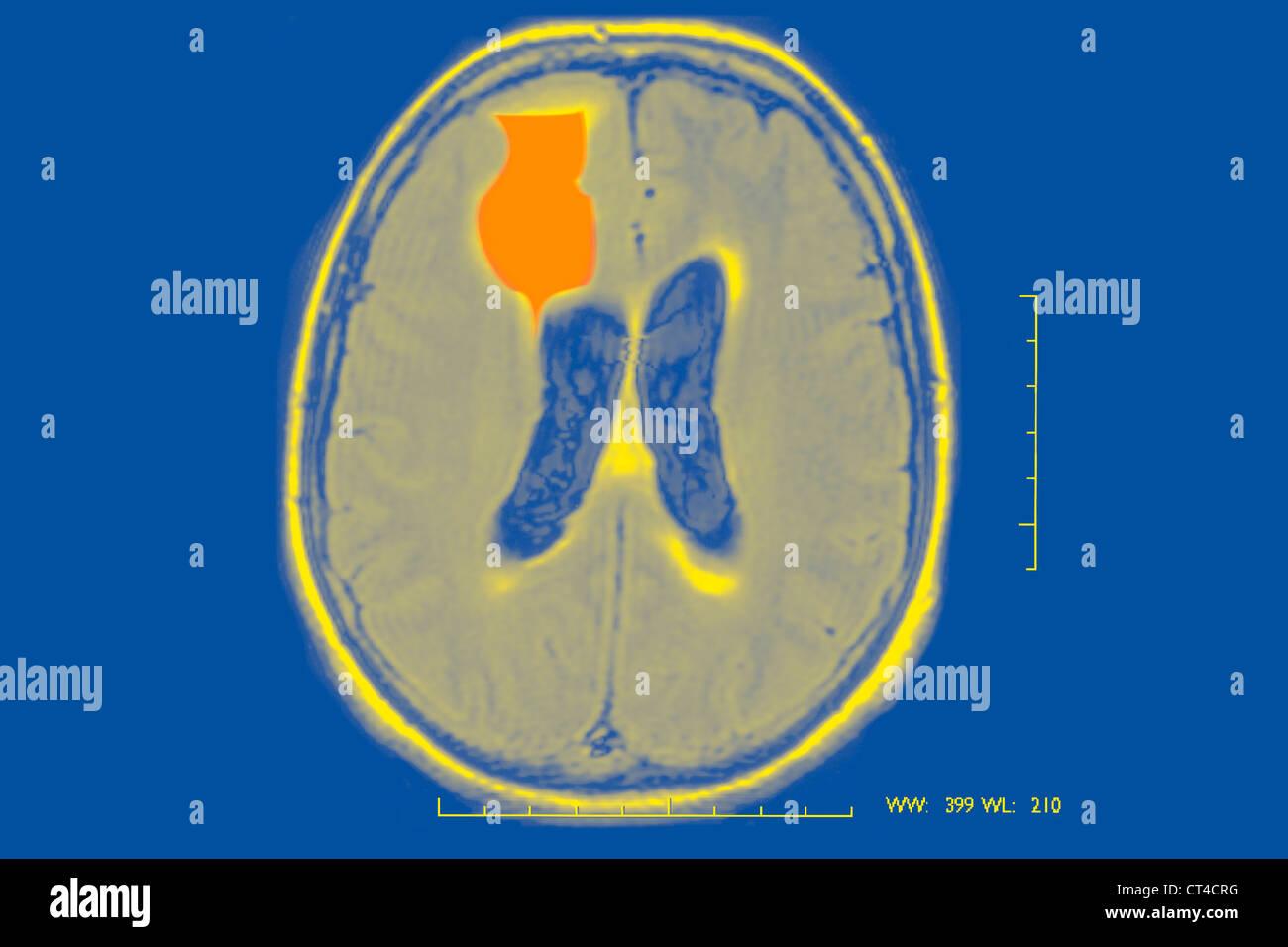 EPILEPSY, MRI Stock Photo