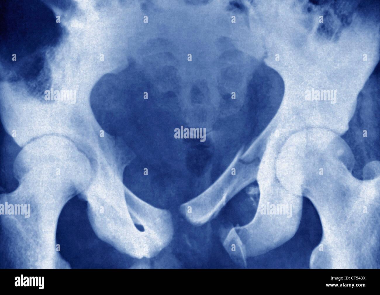 FRACTURED PELVIS, X-RAY - Stock Image