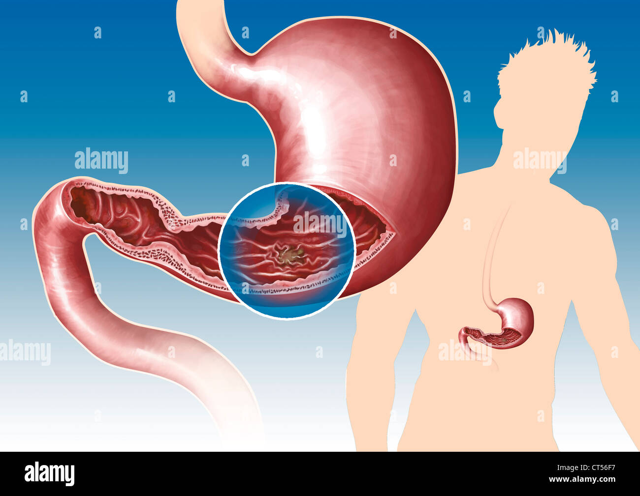 Gastric Ulcer Drawing Stock Photo 49287371 Alamy