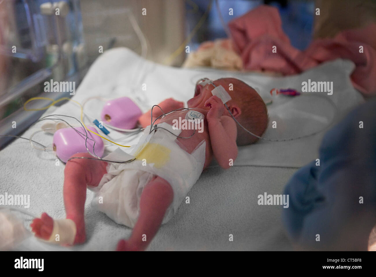 PREMATURE BABY - Stock Image