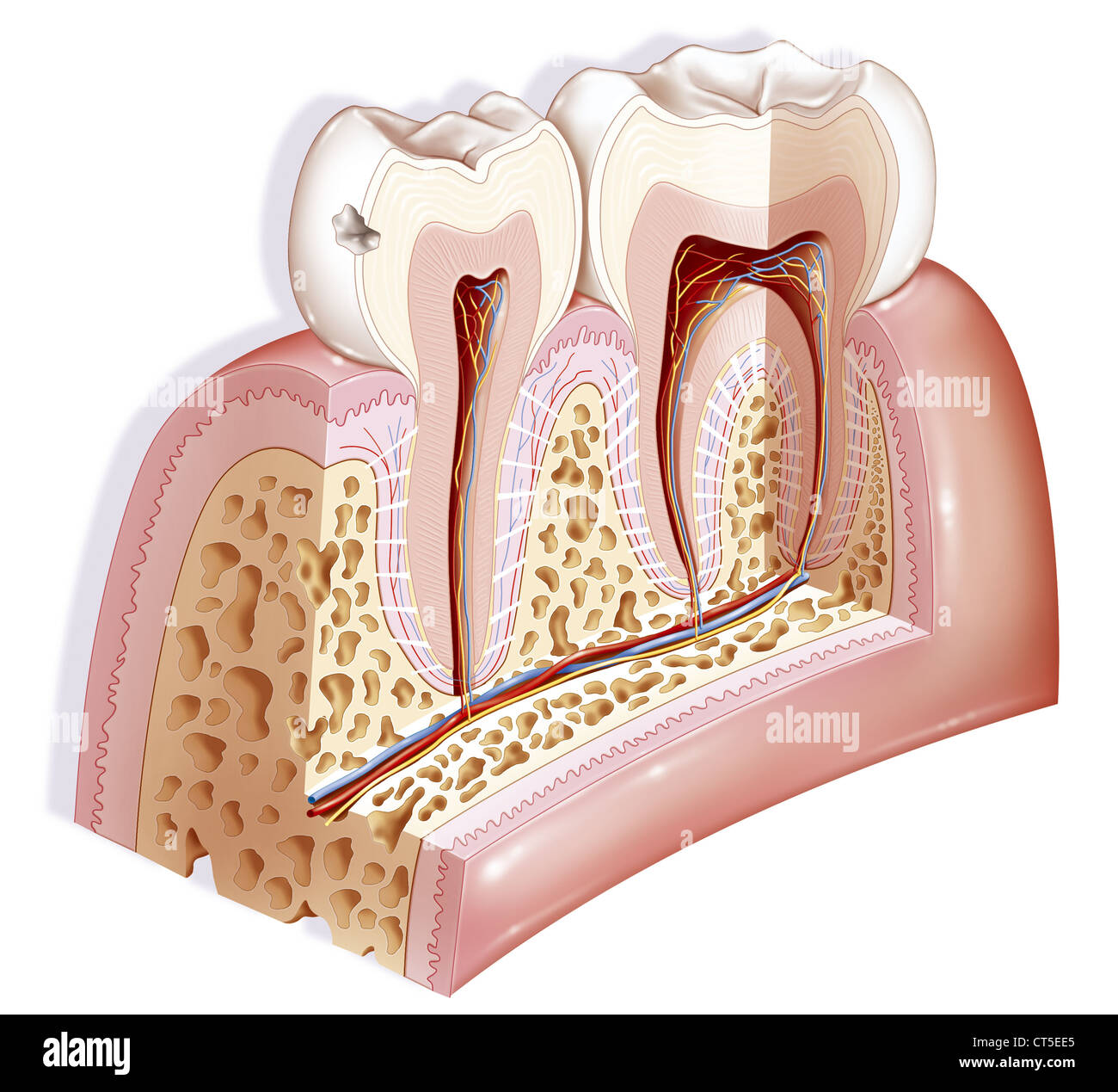 DENTAL CARIE, DRAWING - Stock Image