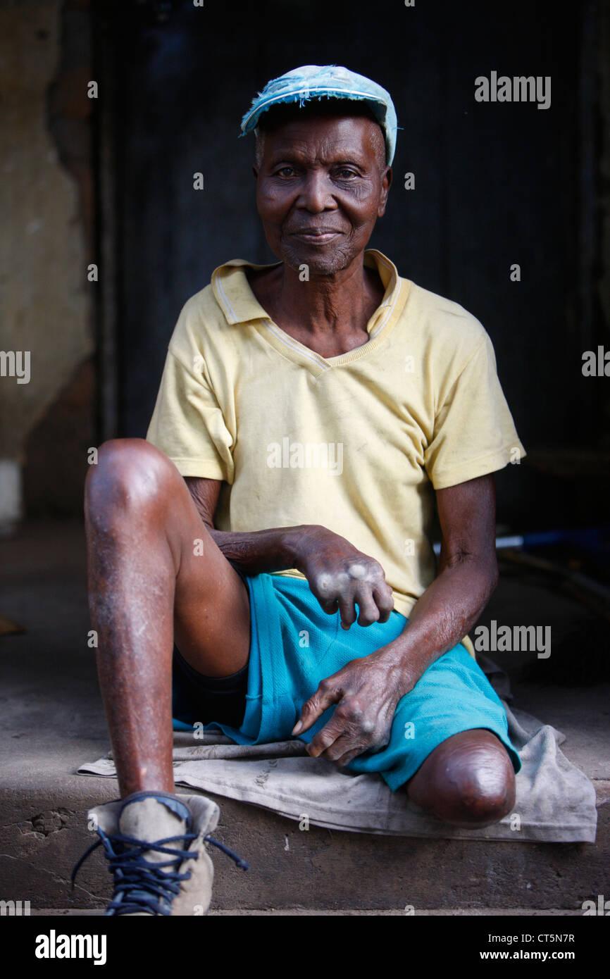 Leprosy Stock Photos Amp Leprosy Stock Images Alamy