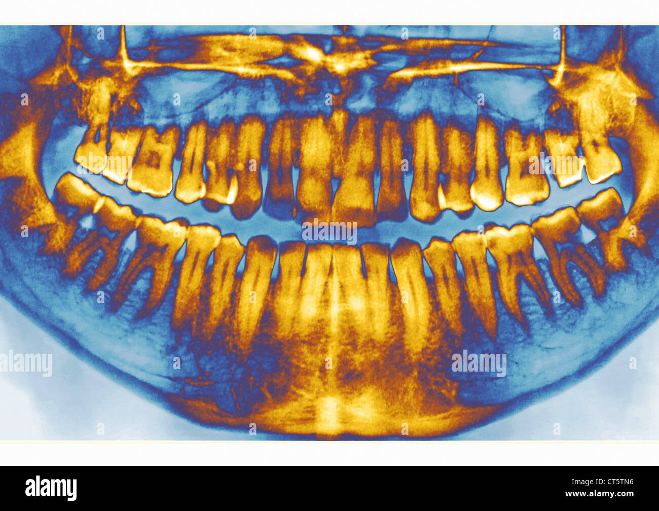 DENTAL X-RAY RESULT - Stock Image