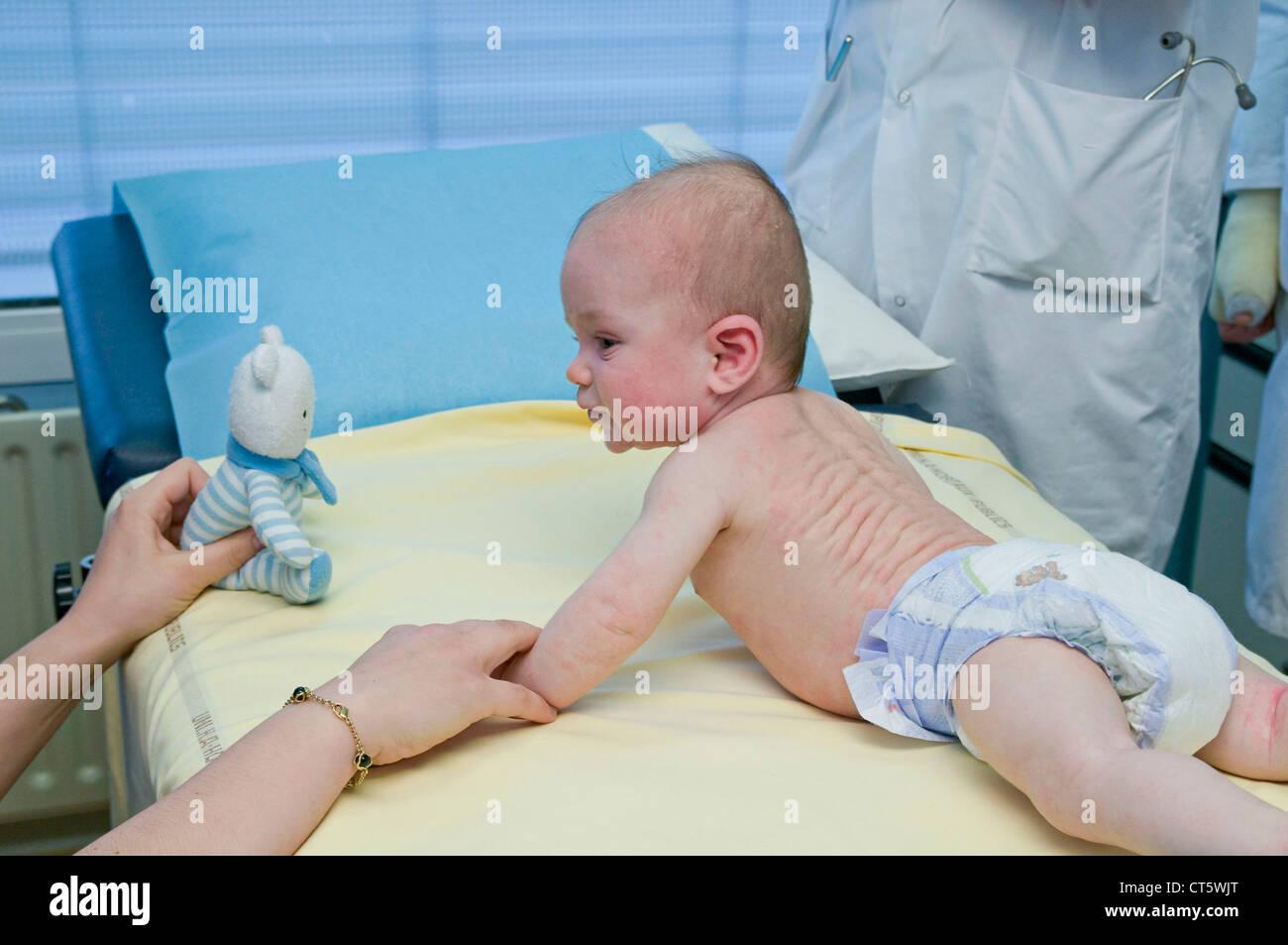 DERMATOLOGY, SYMPTOM, INFANT - Stock Image
