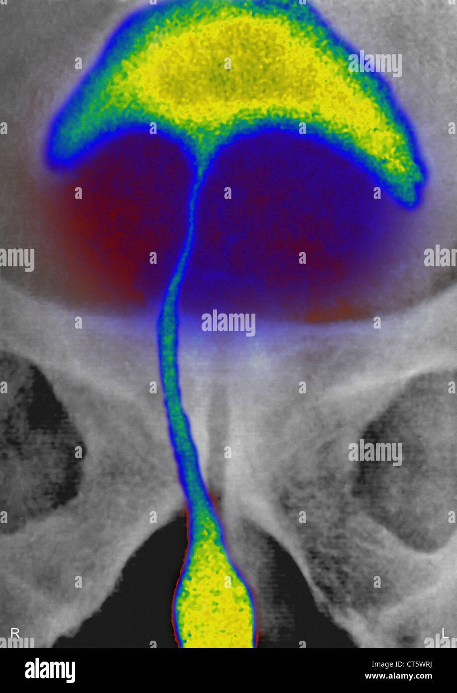 PROSTATIC ADENOMA, X-RAY - Stock Image
