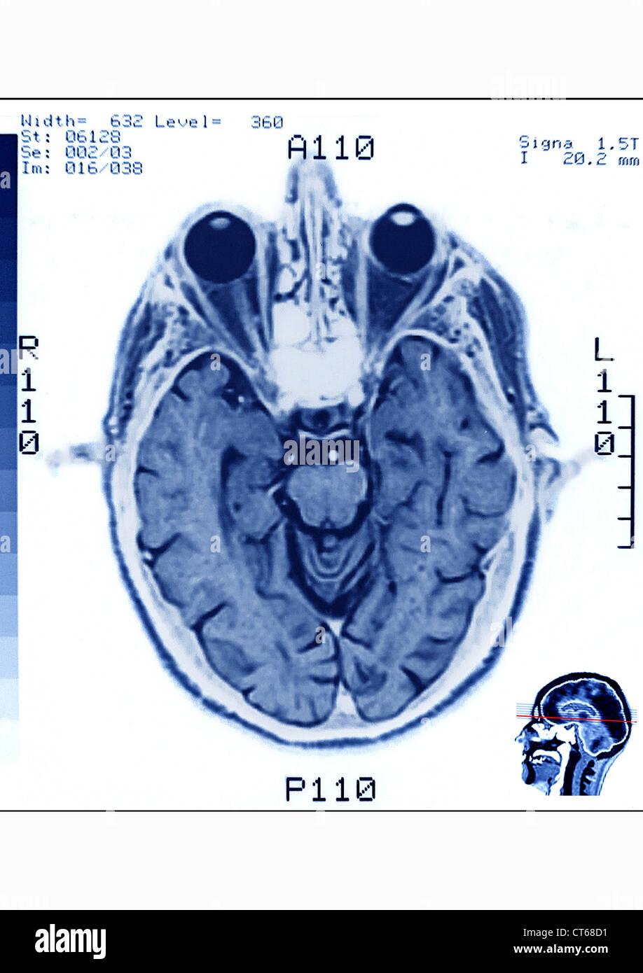 HEAD, MRI - Stock Image