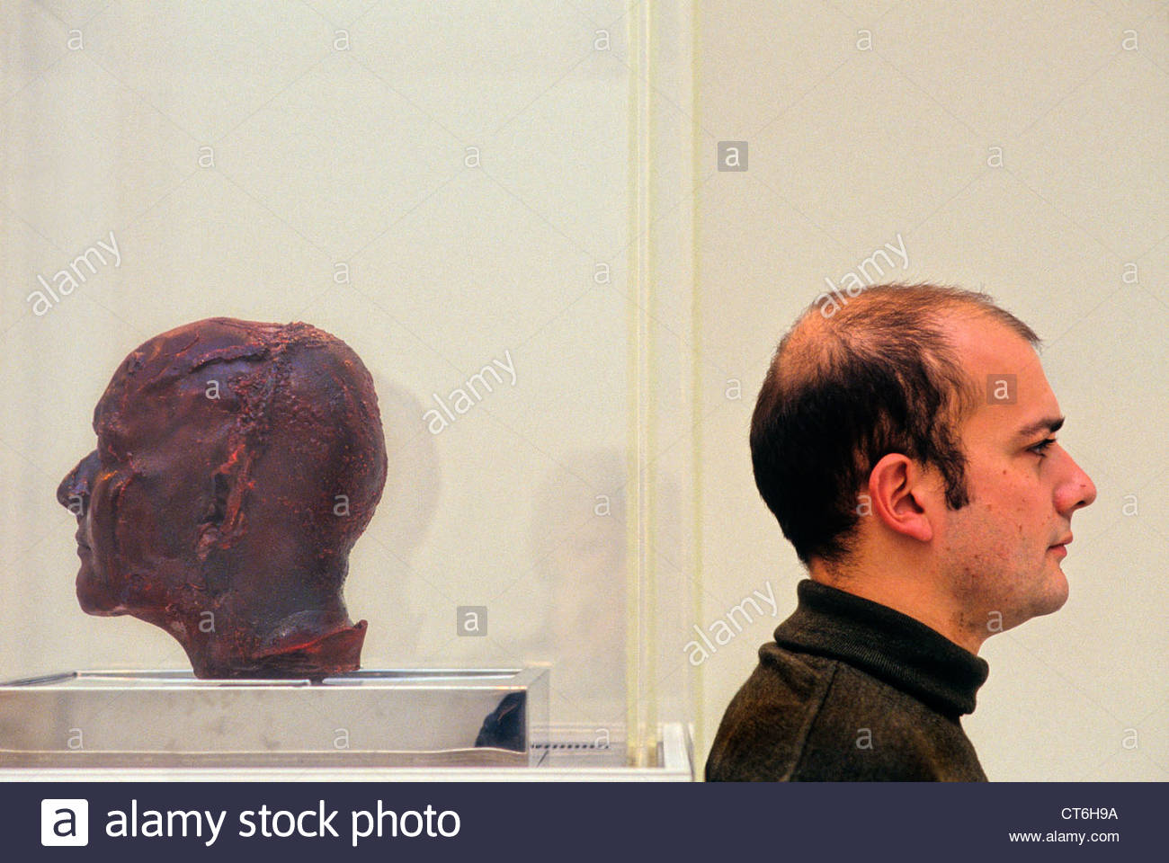 Artist Marc Quinn photographed in 1991 with his 'Blood Head' self-portrait sculpture - Stock Image