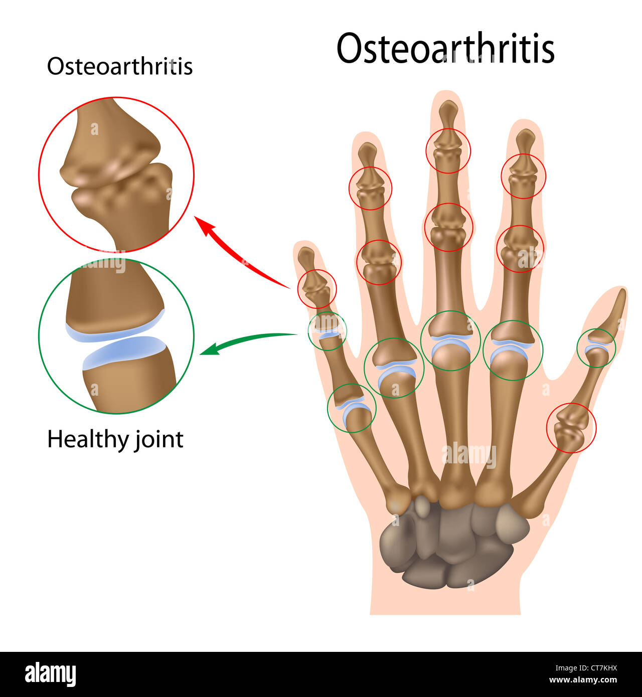 Osteoarthritis of the hand - Stock Image