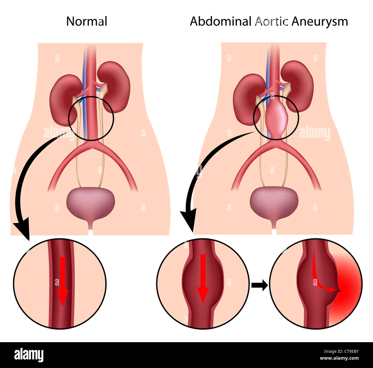 Abdominal aortic aneurysm - Stock Image