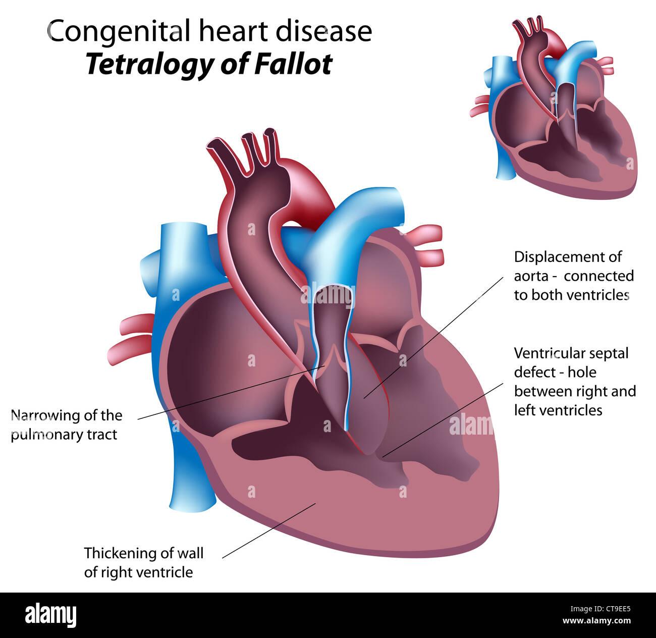 Congenital heart disease tetralogy of fallot stock photo 49381421 congenital heart disease tetralogy of fallot ccuart Choice Image