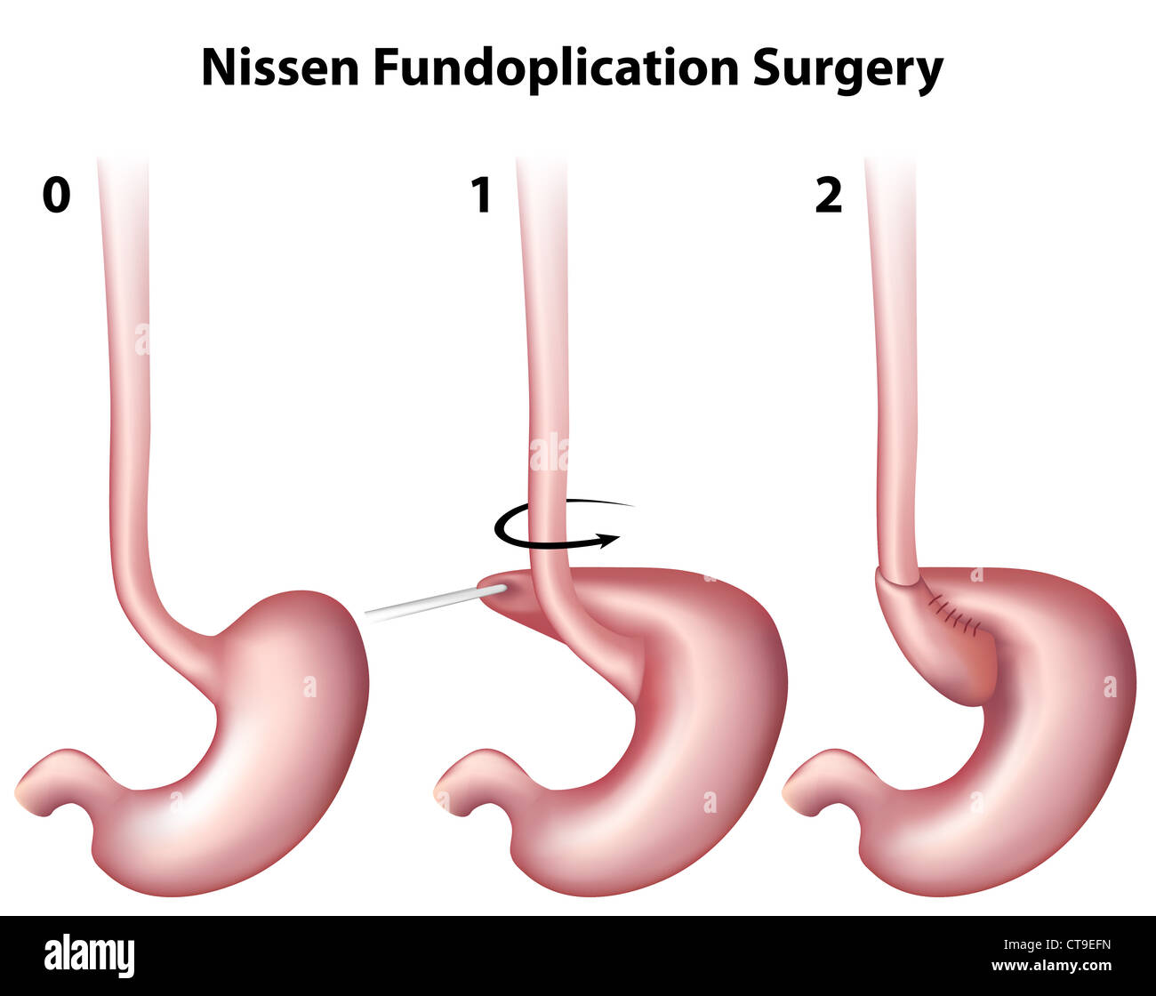 Nissen Fundoplication Surgery Stock Photo: 49381465 - Alamy