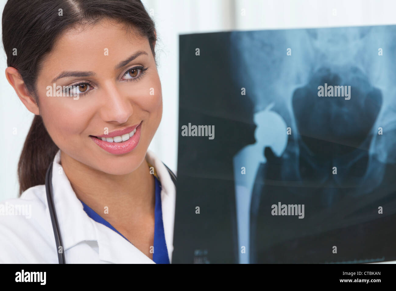 Female woman medical doctor holding artificial hip replacement x-ray in hospital - Stock Image