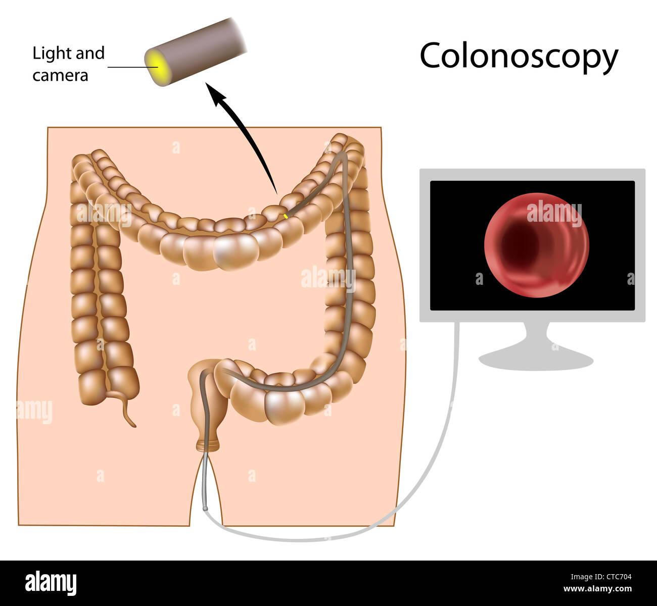 colonoscopy prep instructions pico salax
