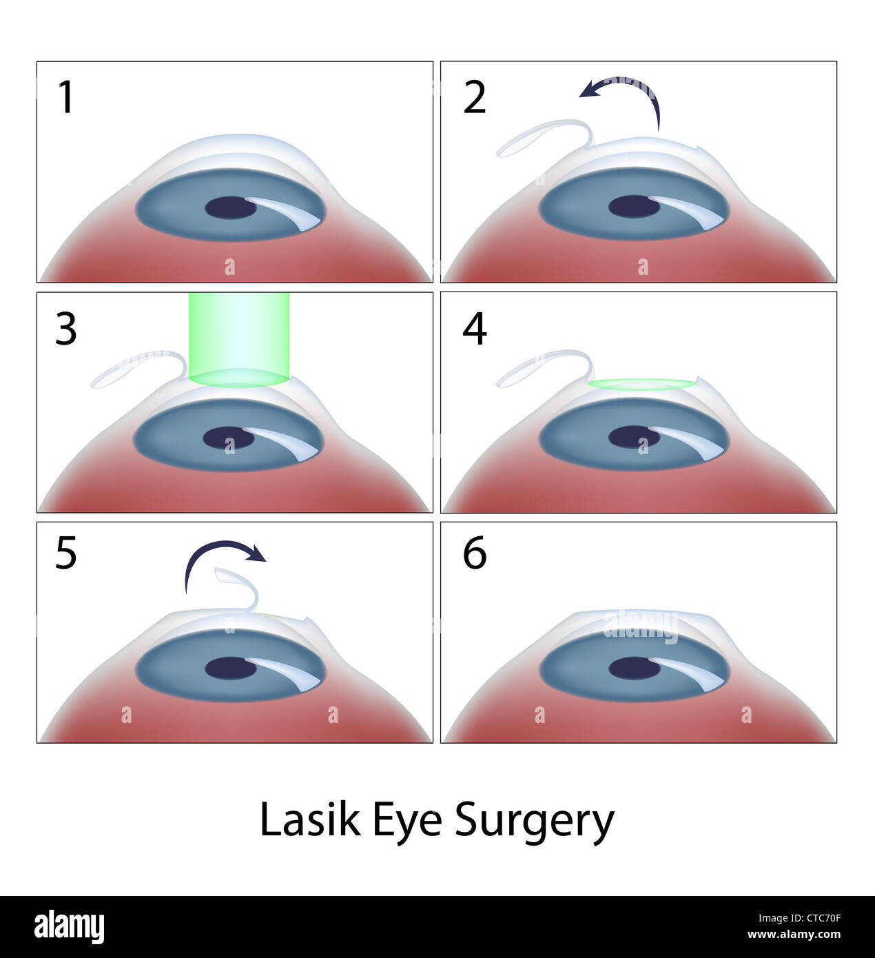 an introduction to the lasik laser eye surgery Lasik (laser in-situ- keratomileusis) is a technique that reshapes the surface of the cornea with an excimer laser, thus correcting vision problems lasik is outpatient surgery performed in dr singer's office lasting approximately five to ten minutes.