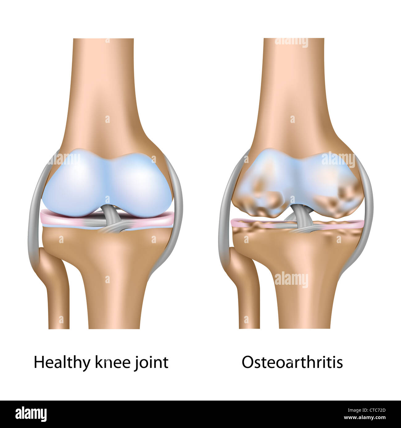 Osteoarthritis of knee joint - Stock Image