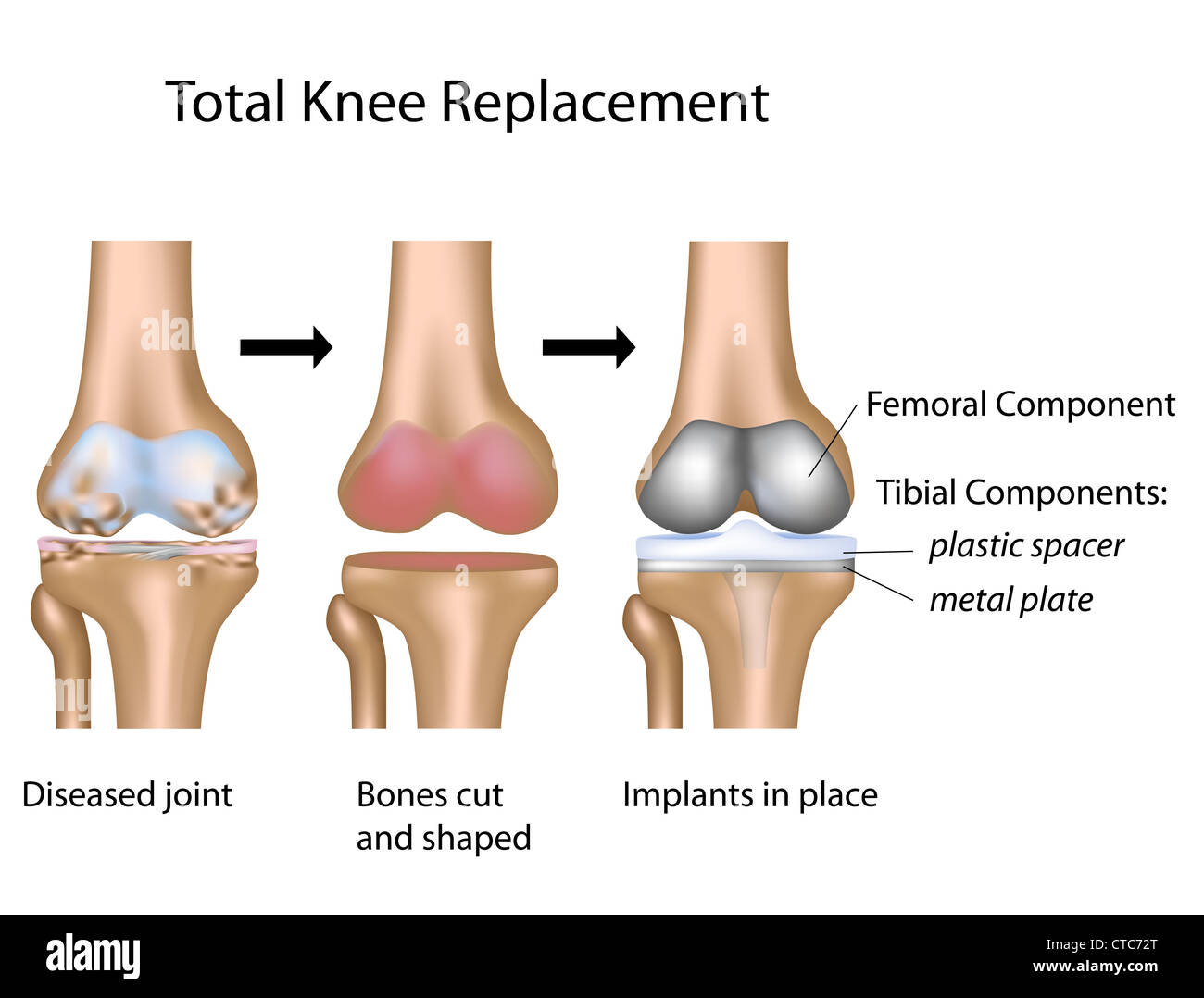 Total knee replacement surgery - Stock Image
