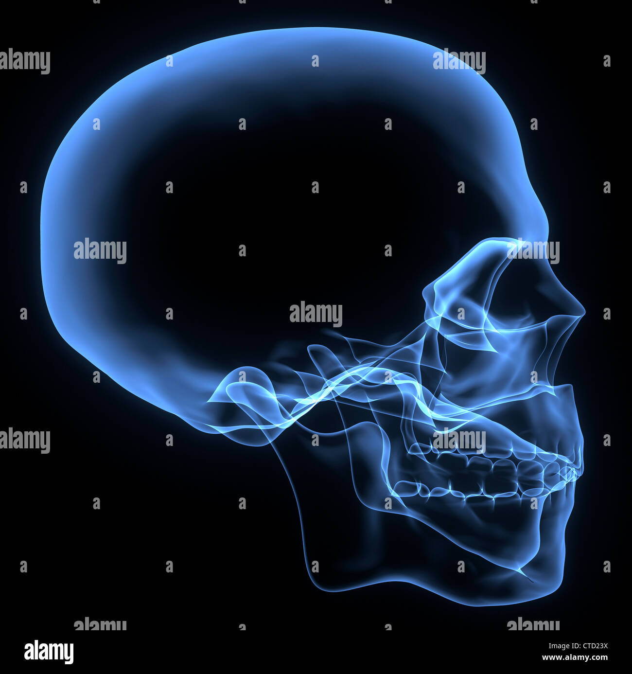 Human skull  X-ray artwork - Stock Image