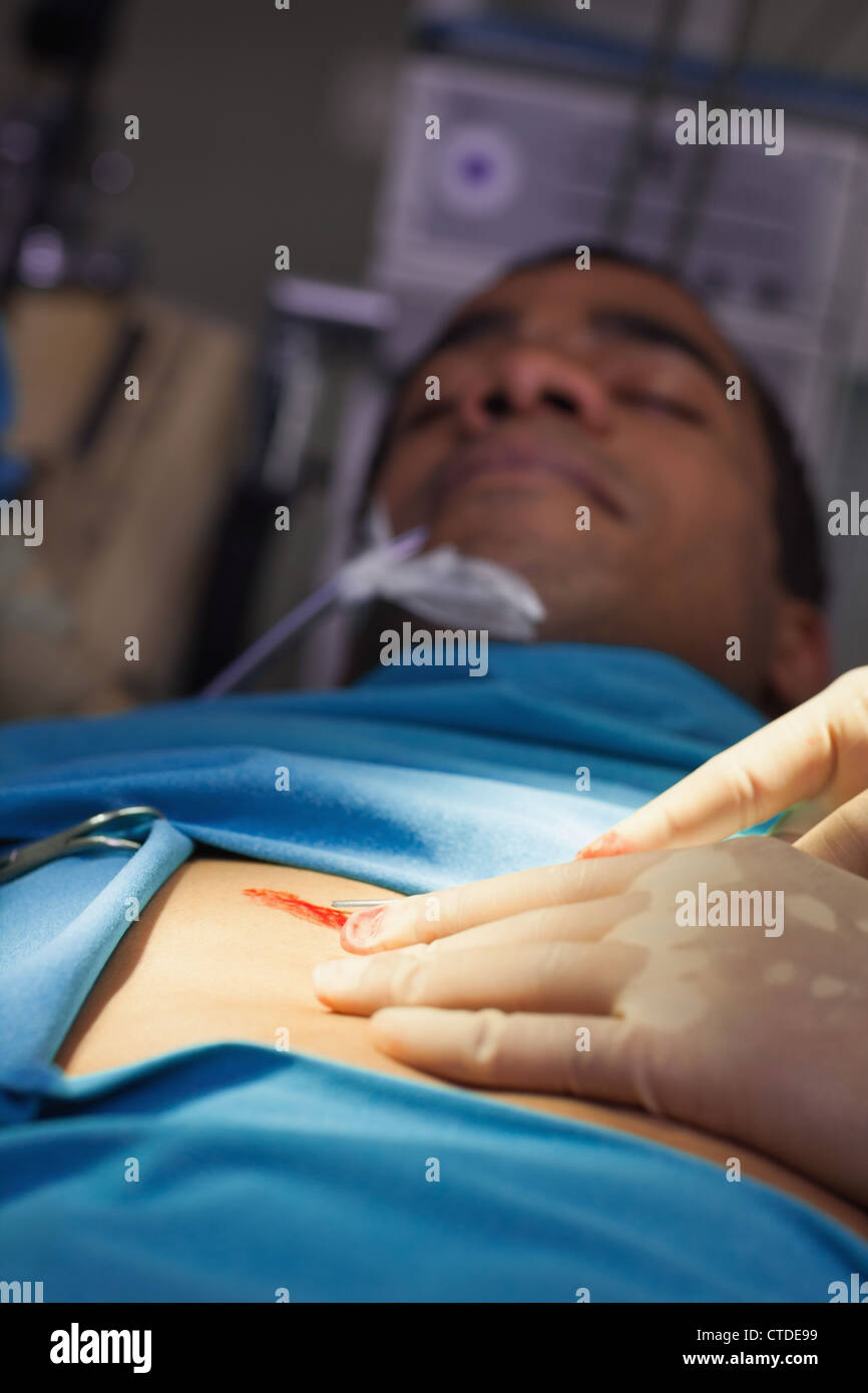 Unconscious male patient on an operating table - Stock Image