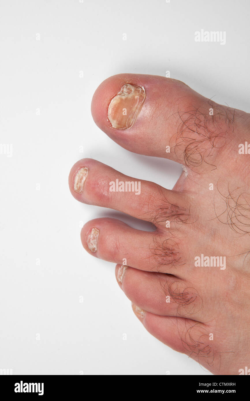 Nail Infection Stock Photos & Nail Infection Stock Images - Alamy