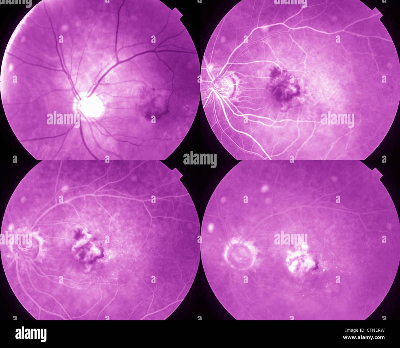 Four phases eye angiography showing AMD age-related macular degeneration - Stock Image