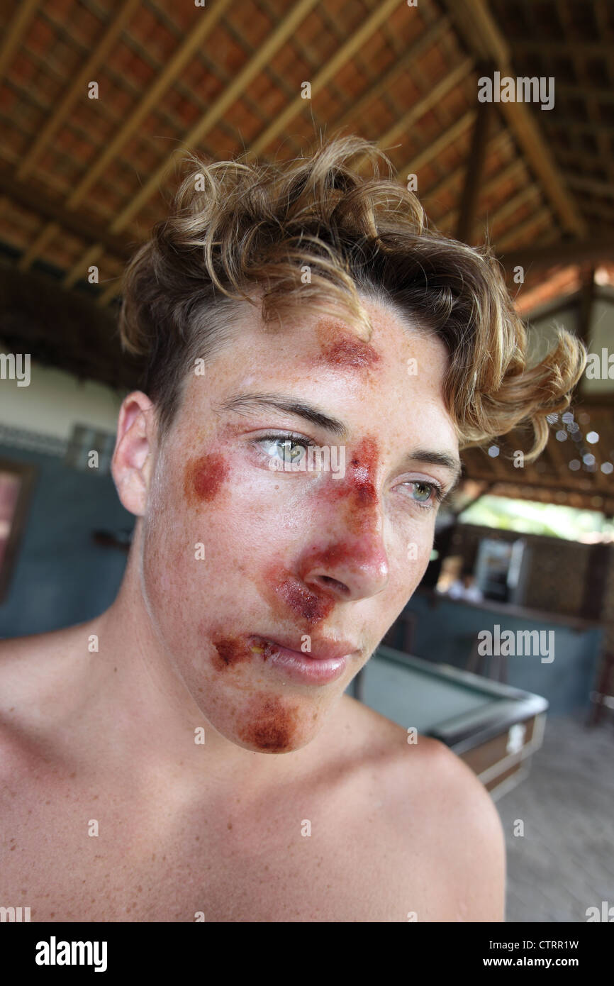 Young Australian surfer with superficial face injuries as a result of hitting the ocean floor while surfing in Sumatra. - Stock Image