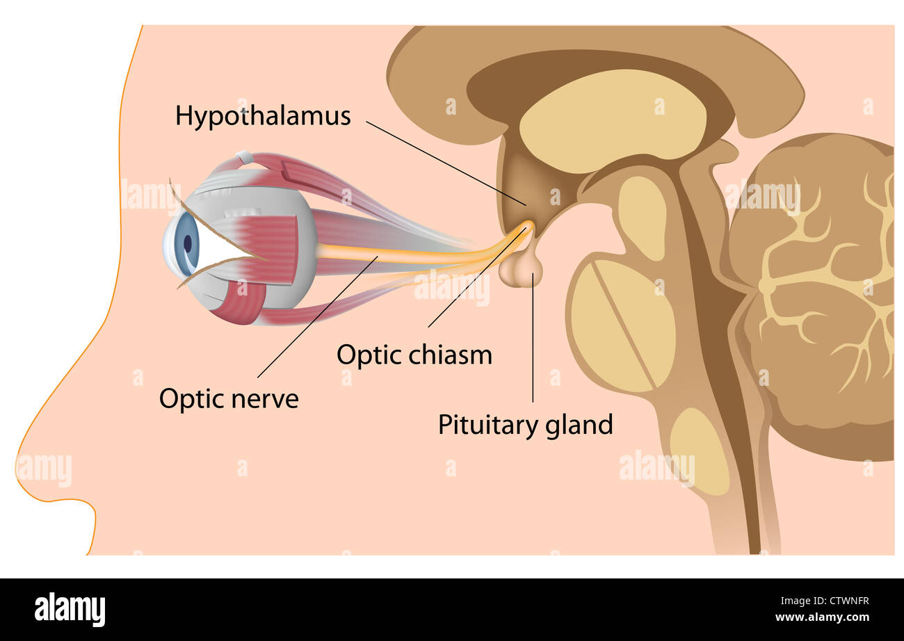 Pituitary gland position relatively to optic nerves and optic chiasm ...