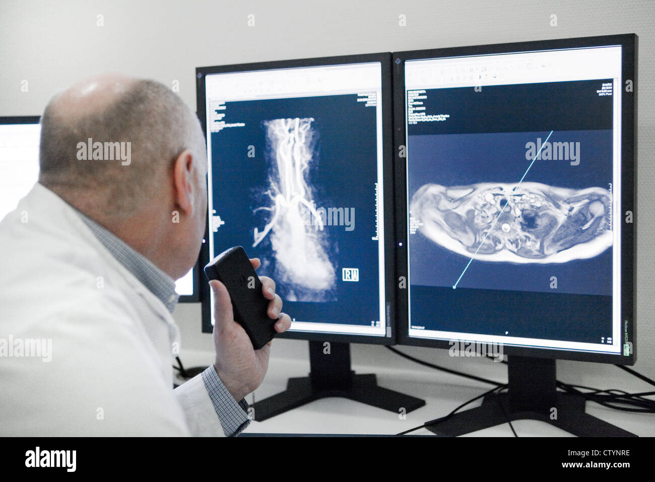 Radiologist examines a MRI scan image - Stock Image