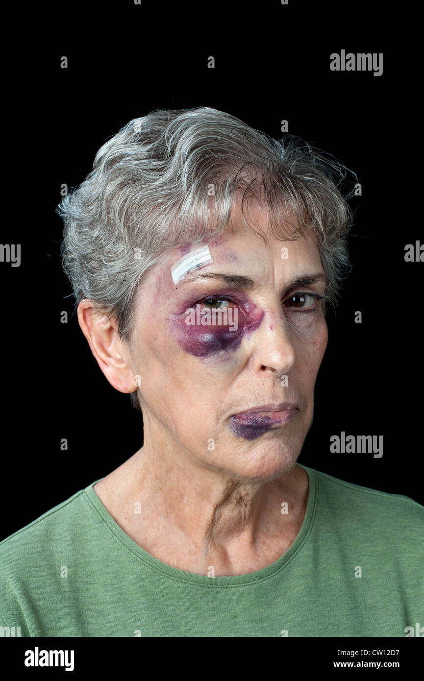 An elderly woman beaten and bruised shows the problems that exist with domestic violence - Stock Image