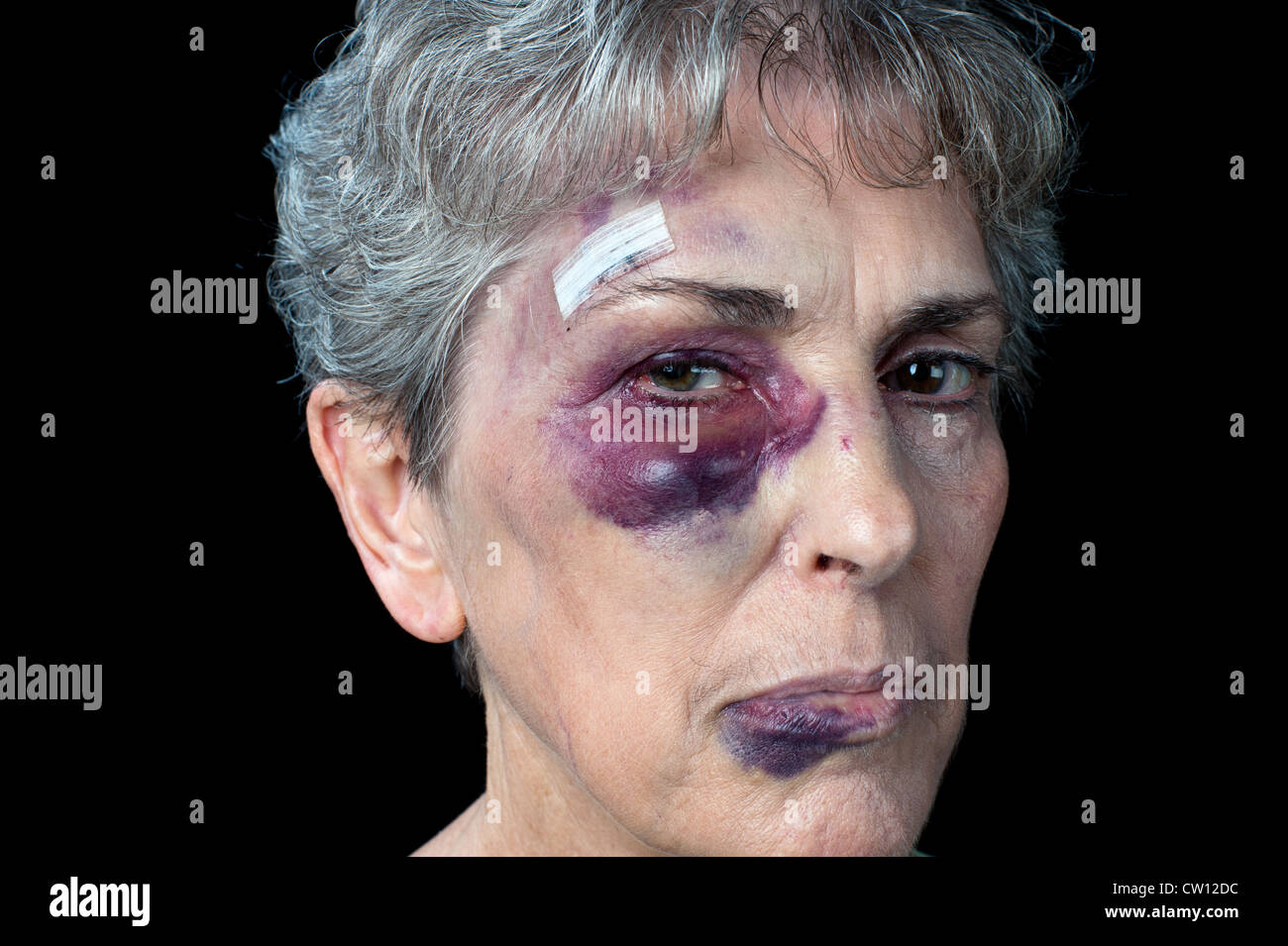 An elderly grandmother badly beaten with stitches, a black eye and a fat lip. - Stock Image