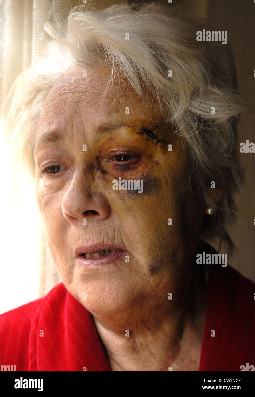 Woman victim of domestic violence - Stock Image