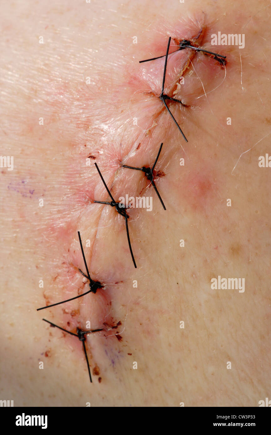 Surgical incision wound from rotator cuff shoulder surgery-Victoria, British Columbia, Canada. - Stock Image