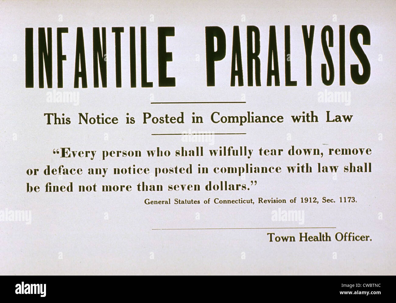 Early 20th century quarantine sign for the contagious disease infantile paralysis (polio). - Stock Image