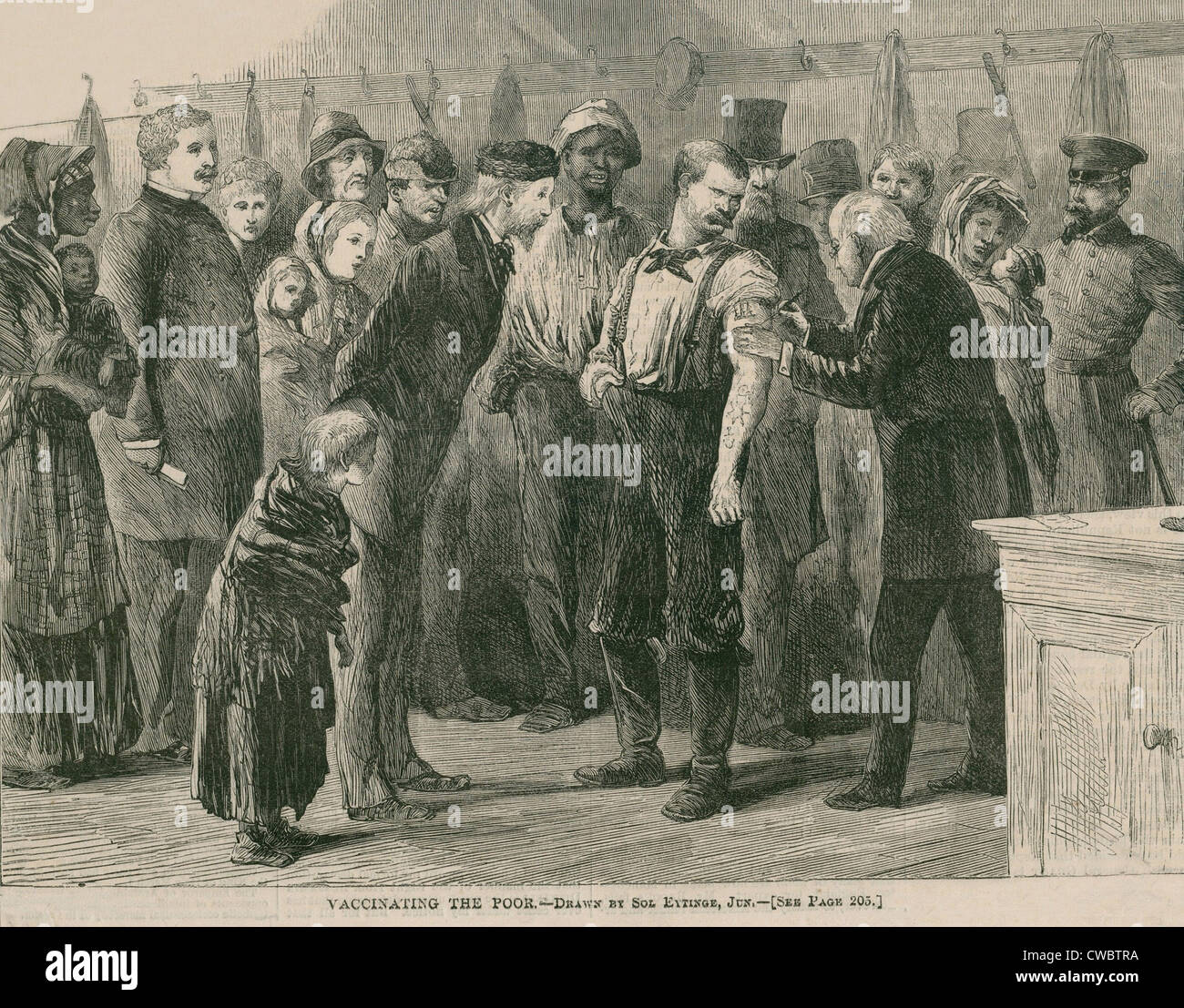Vaccinating the poor of New York City against smallpox in 1872.  In 1863, the mass production of smallpox vaccine - Stock Image