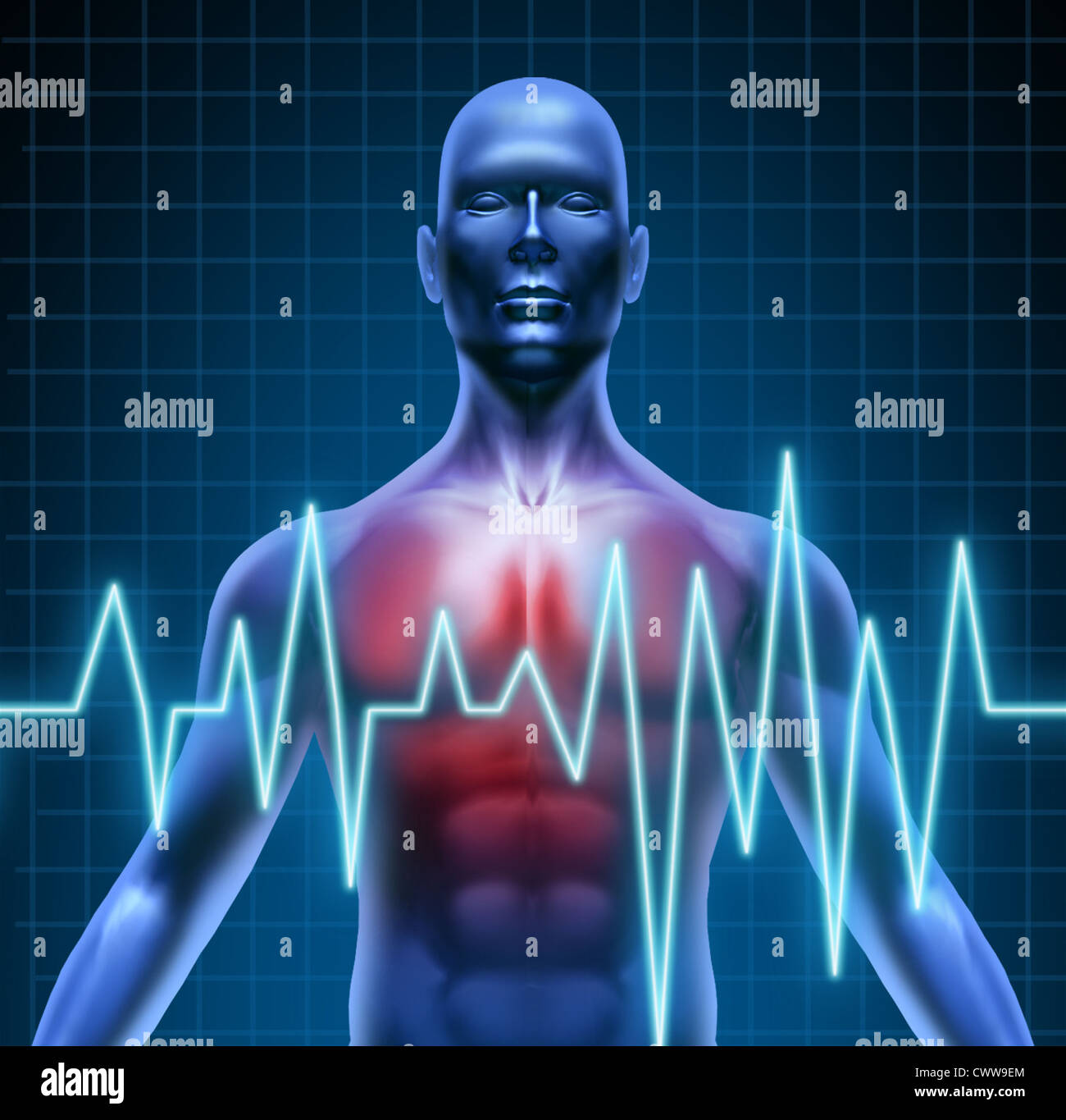 Heart and coronary disease representing the medical concept of cardiac problems stemming from human blood circulation - Stock Image