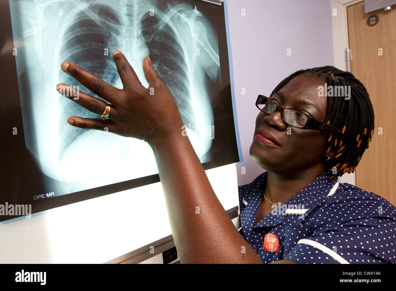 Sister looking at a chest  Xray - Stock Image