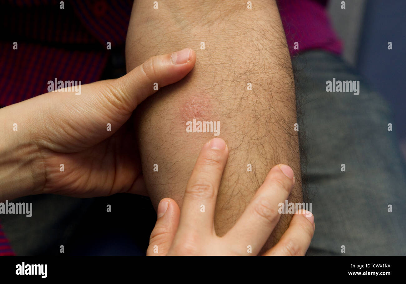 Positive result of Tuberculosis test - Stock Image