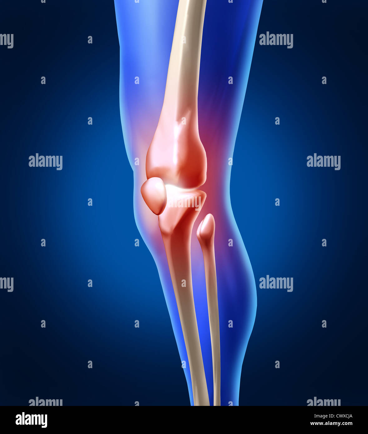 Human knee pain with the anatomy of a skeleton leg and showing the ...