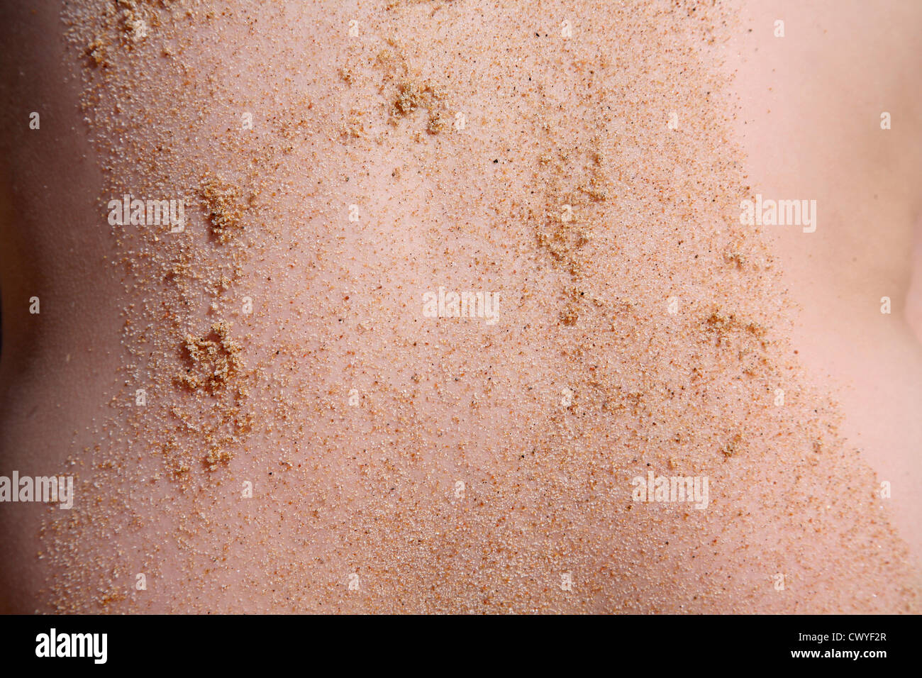 Sandy Skin - Stock Image