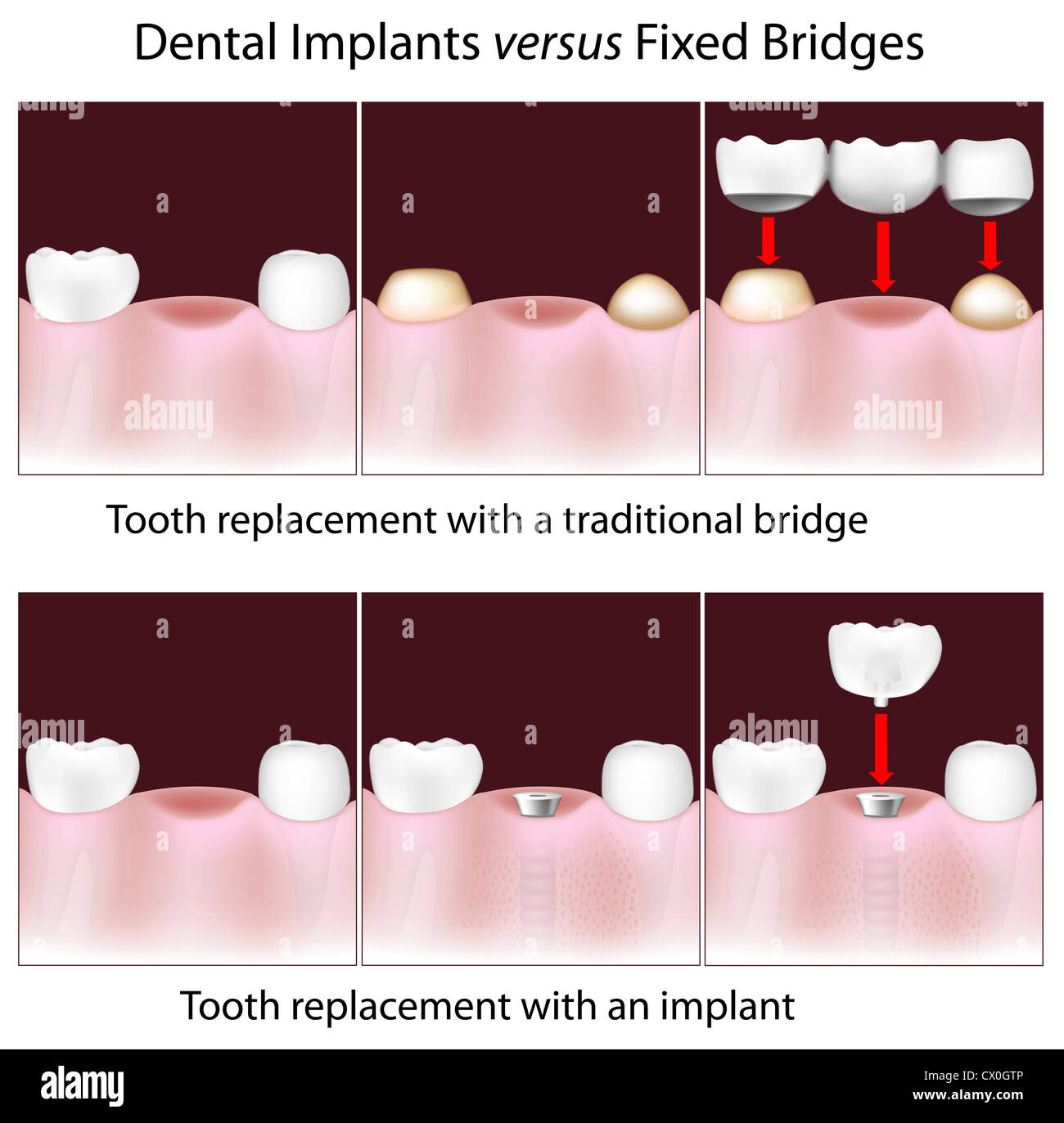 Dental implants versus traditional fixed bridges - Stock Image
