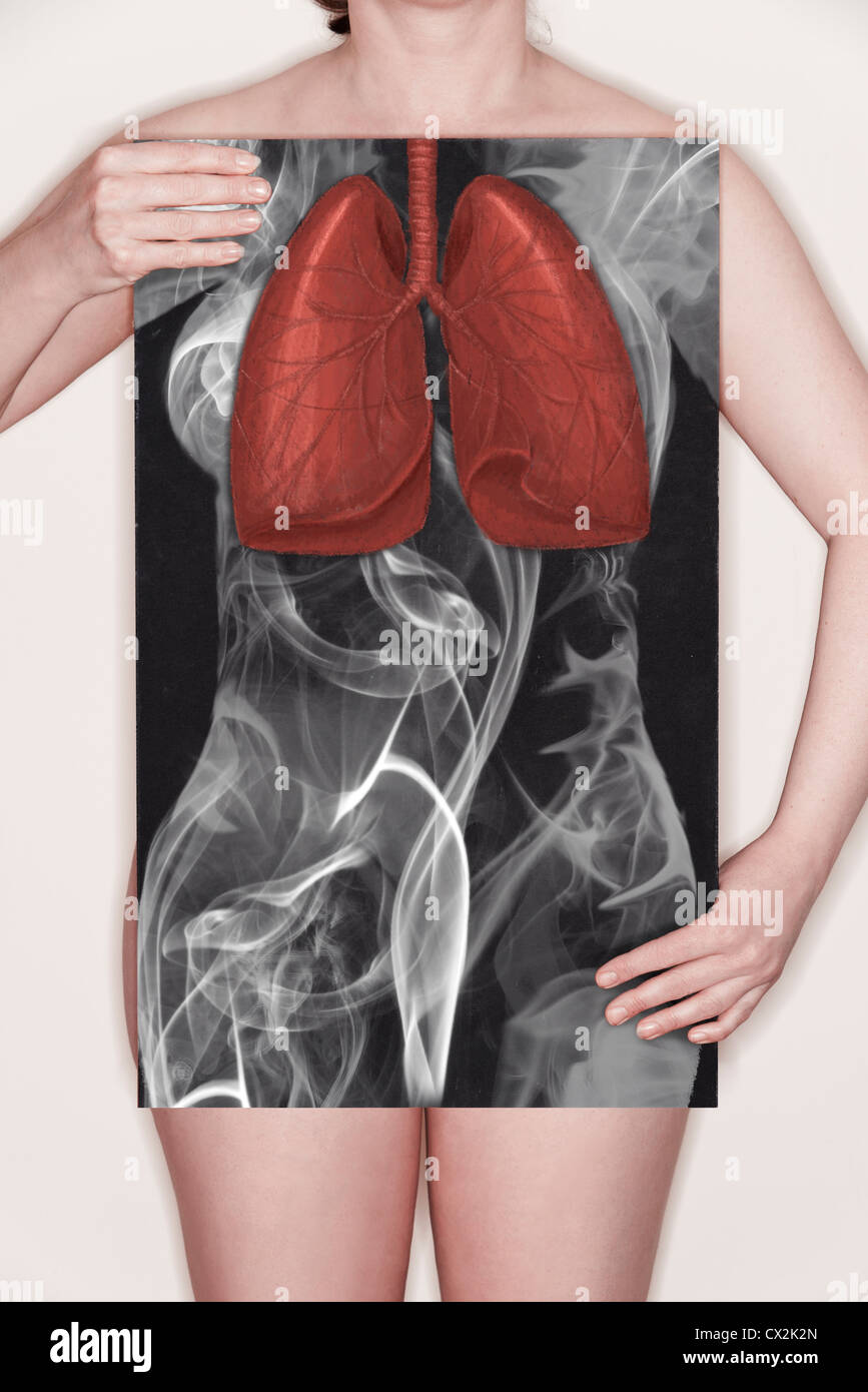Woman holding a blackboard with an illustration of Lungs drawn chalk and an outline of the body made from smoke. - Stock Image