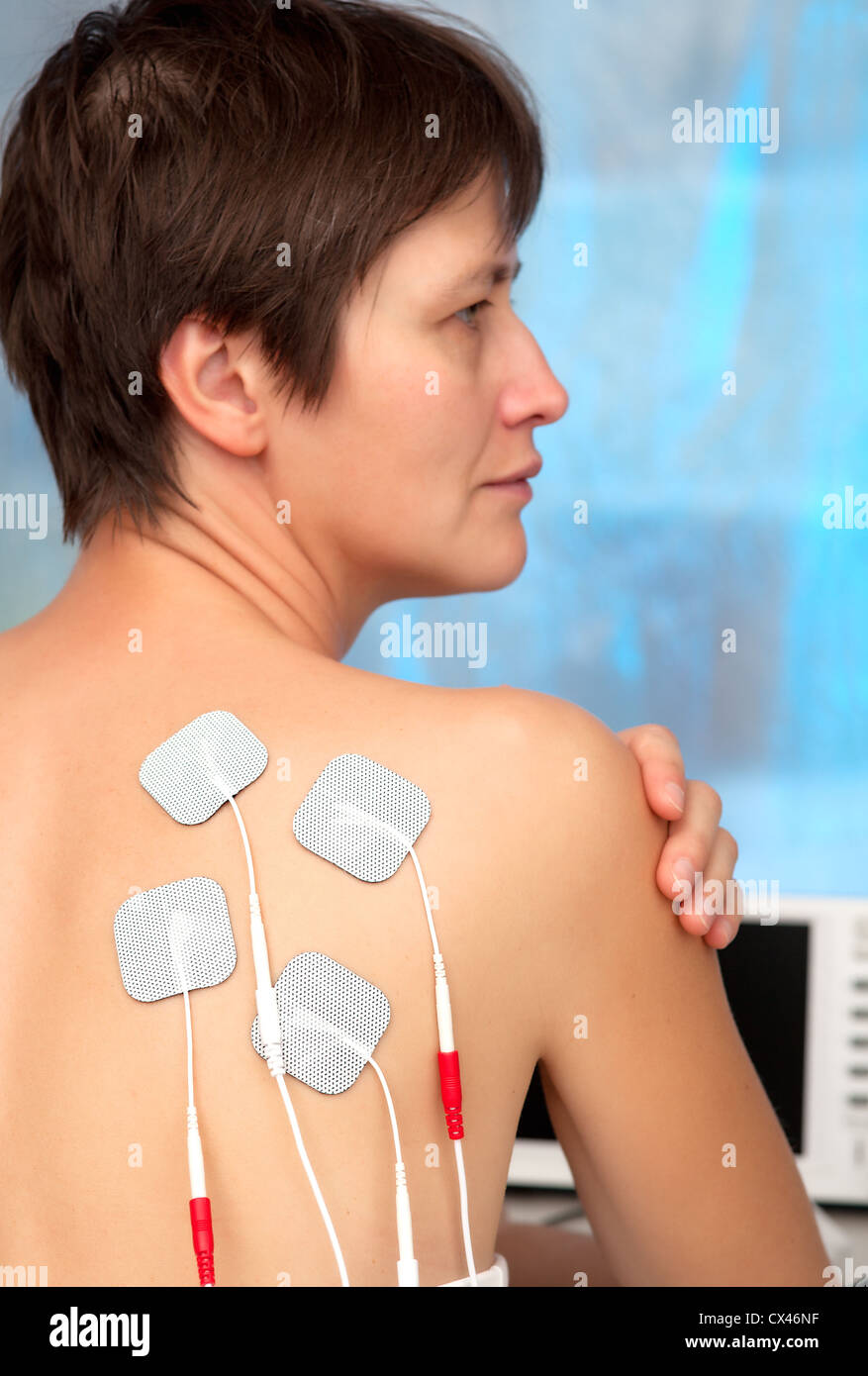 electrodes of tens device on the woman's back, tens therapy, nerve stimulation - Stock Image