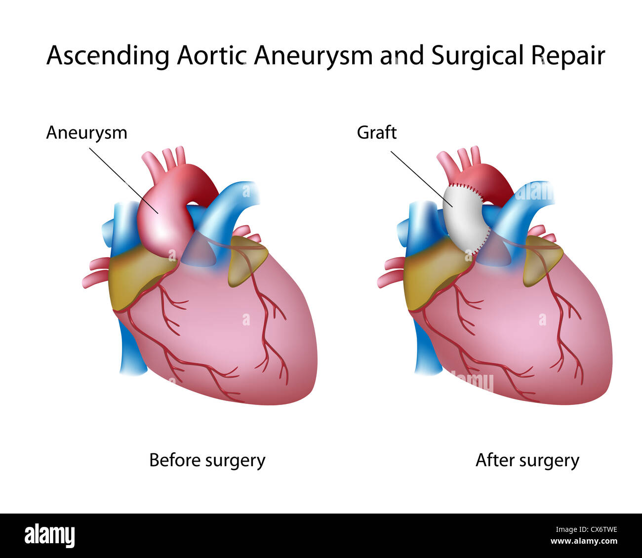 Ascending Aortic Aneurysm And Open Surgery Stock Photo 50553034 Alamy