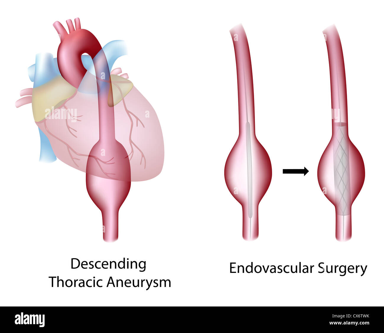 Thoracic Aortic Aneurysm Stock Photos Thoracic Aortic Aneurysm