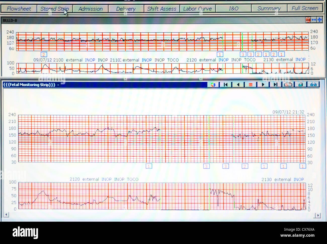 fetal monitoring results - Stock Image