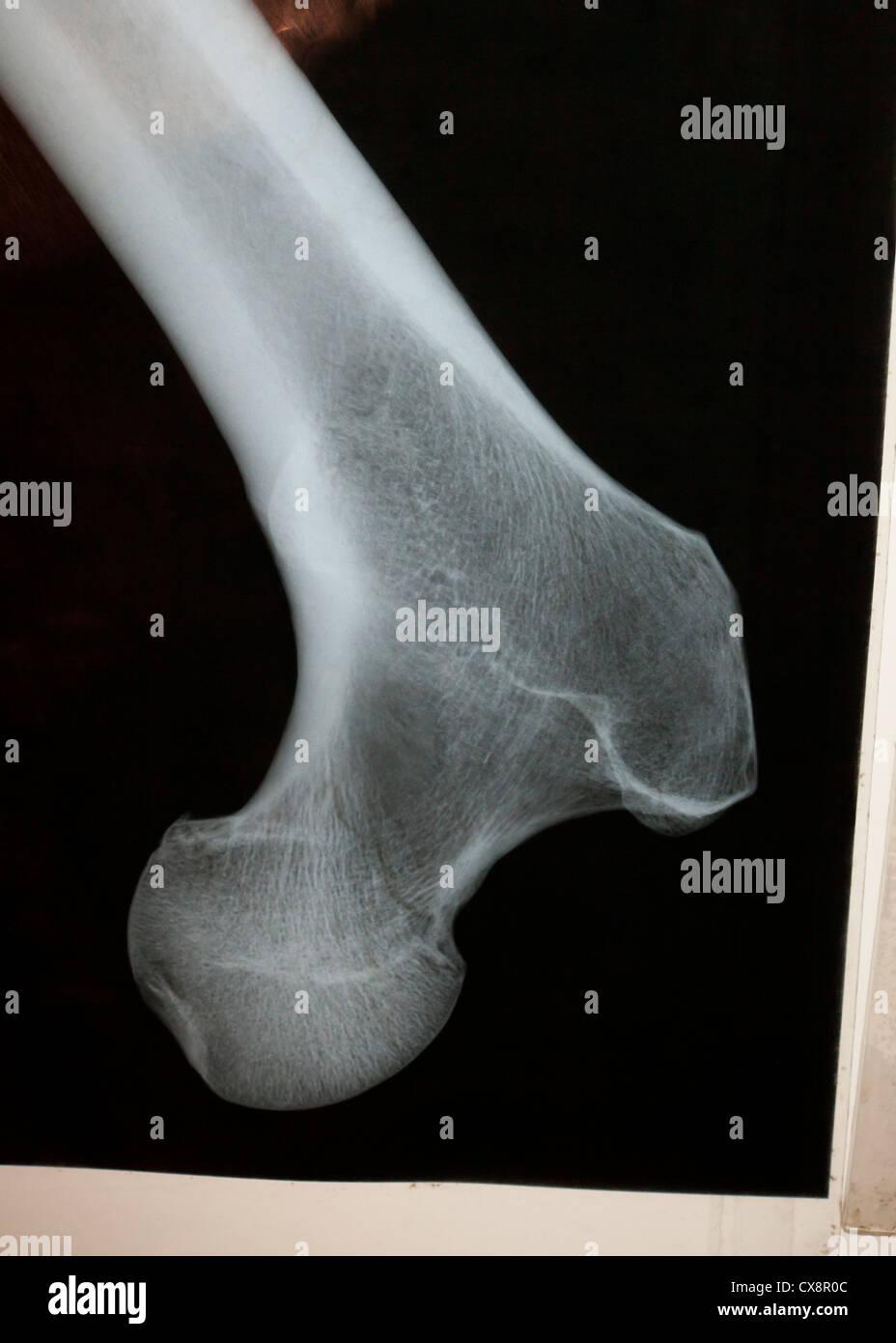 X-ray of femur bone - Stock Image