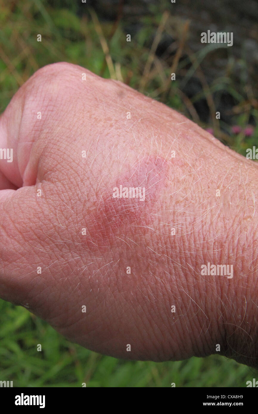 Caucasian Man's Hand showing a Burn Mark Injury to His Skin MODEL